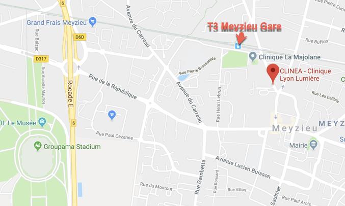 Plan d'accès à la Clinique Lyon Lumière à Meyzieu